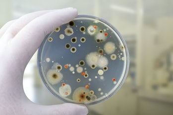 Colonies of different bacteria and mold fungi grown on Petri dish with nutrient agar, close-up view....