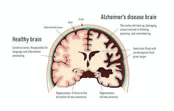 Human brain.  Healthy and brain with Alzheimer's disease