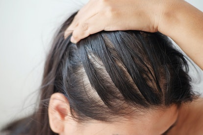 A certain amount of daily hair fall is normal, so it can be difficult to know how to tell if your hair is thinning.