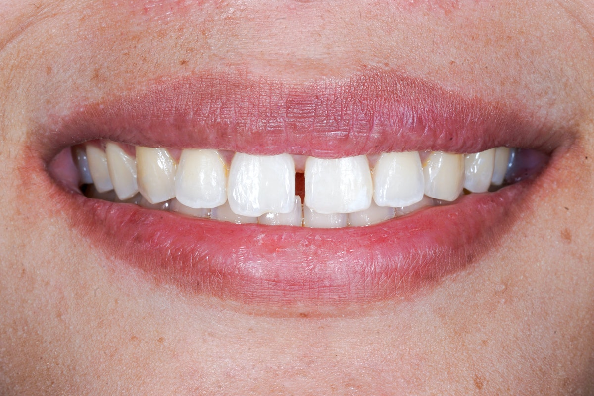 diastema smile show spacing at upper anterior teeth