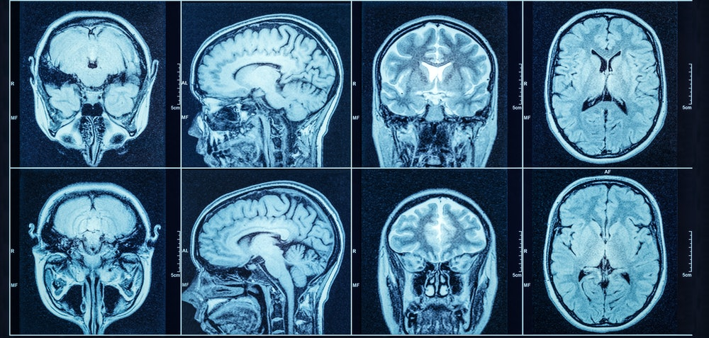 Closeup of a CT scan with brain. Medical, science and education mri brain background. Magnetic reson...