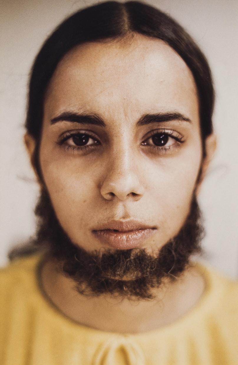 GP 0644 - Facial Hair Transplants (beard) E.JPG
