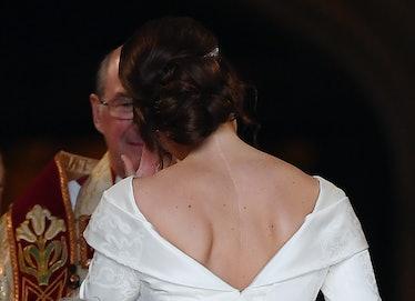 Princess Eugenie scar embed