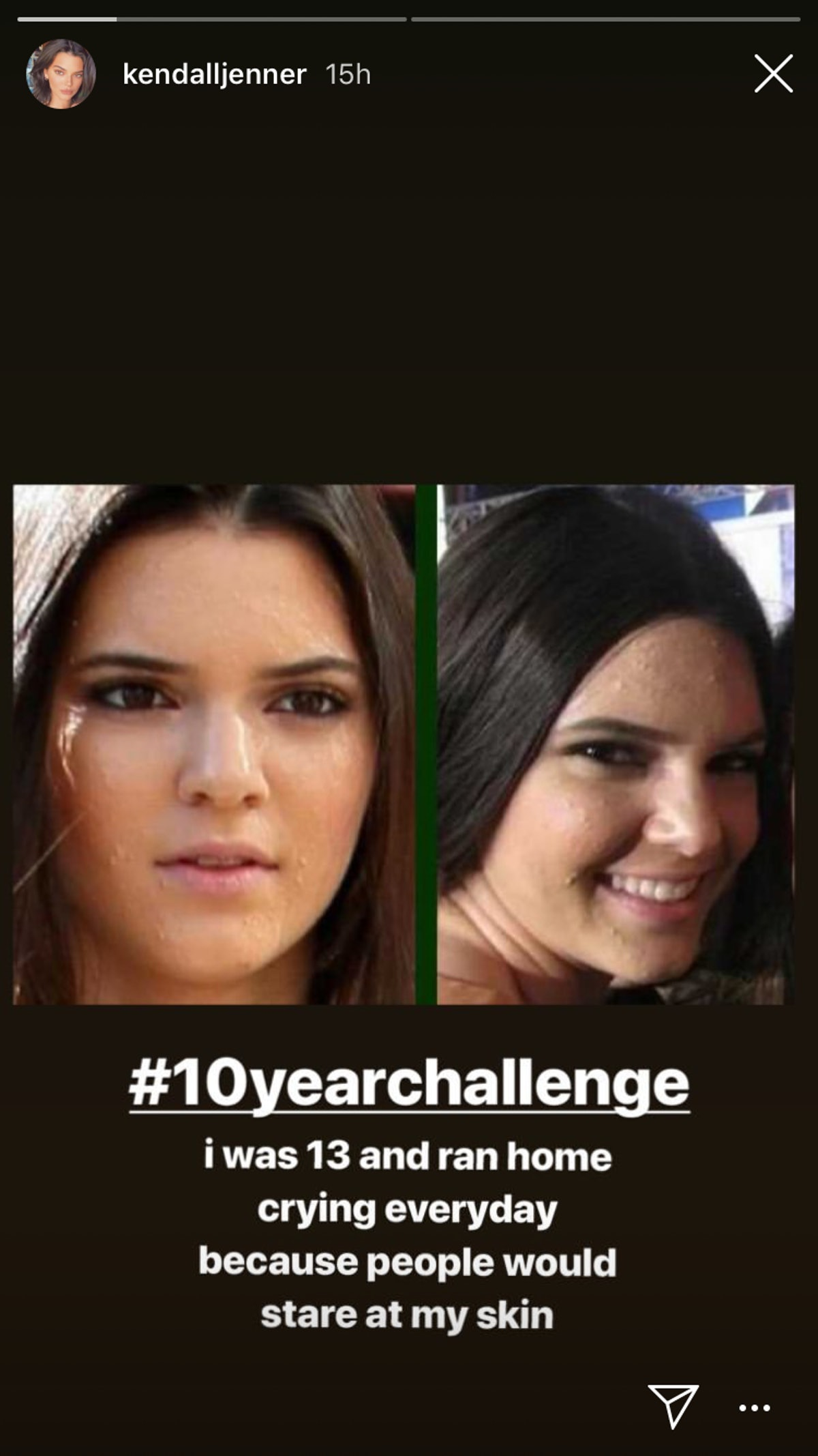 Kendall Jenner acne1